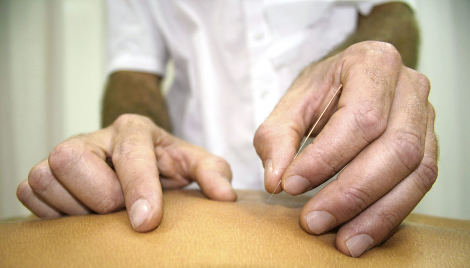 chinese-medicine-treatment-close-up-of-hands-doing-acupuncture-sportreat-services-dry-needling